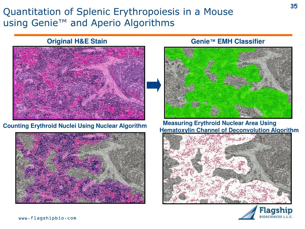 Quantitation of Splenic Erythropoiesis in a Mouse using Genie™ and Aperio Algorithms