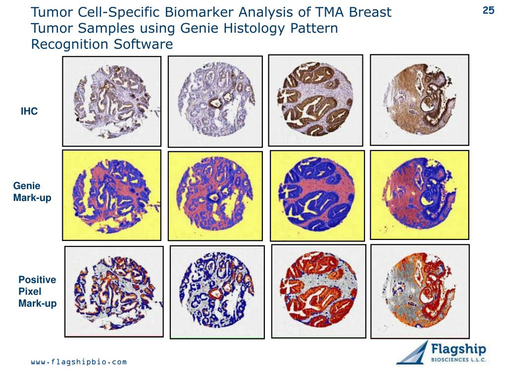 Tumor Cell-Specific Biomarker Analysis of TMA Breast Tumor Samples using Genie Histology Pattern Recognition Software