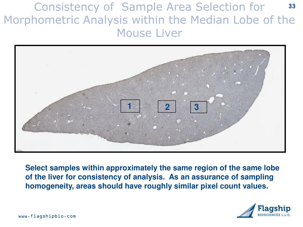 Consistency of  Sample Area Selection for Morphometric Analysis within the Median Lobe of the Mouse Liver