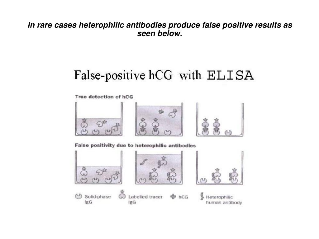 In rare cases heterophilic antibodies produce false positive results as seen below.