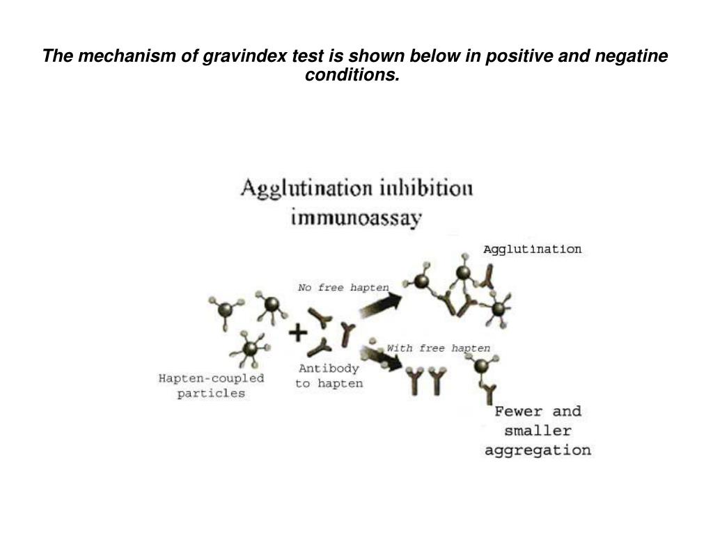 The mechanism of gravindex test is shown below in positive and negatine conditions.