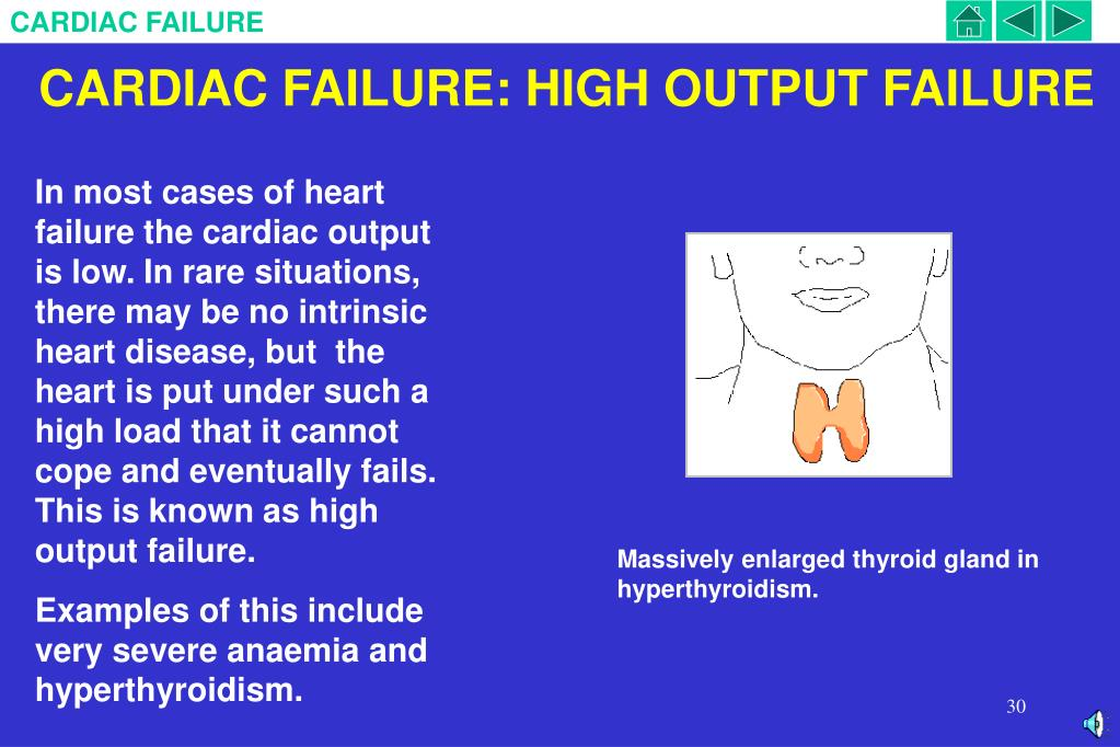 CARDIAC FAILURE: HIGH OUTPUT FAILURE