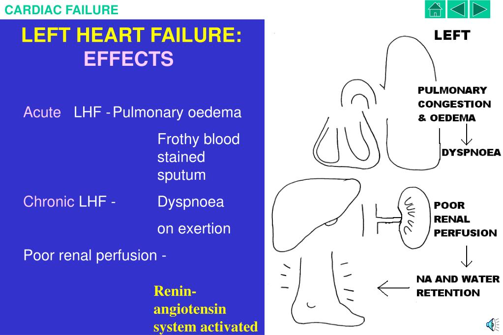 LEFT HEART FAILURE: