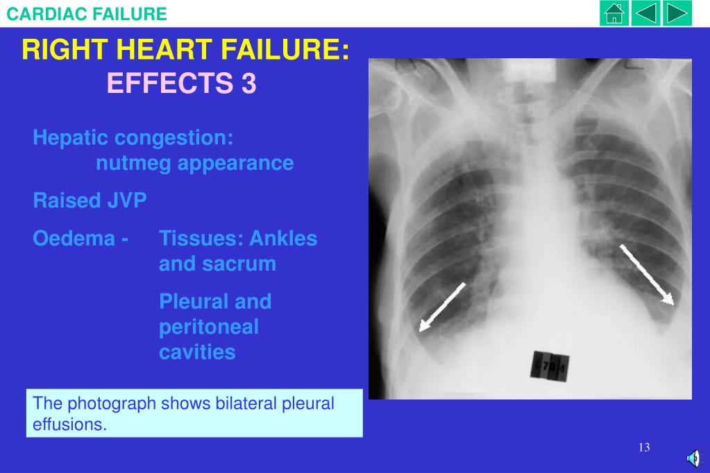 RIGHT HEART FAILURE: