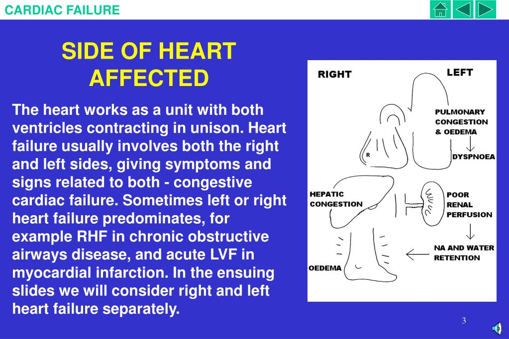 SIDE OF HEART AFFECTED