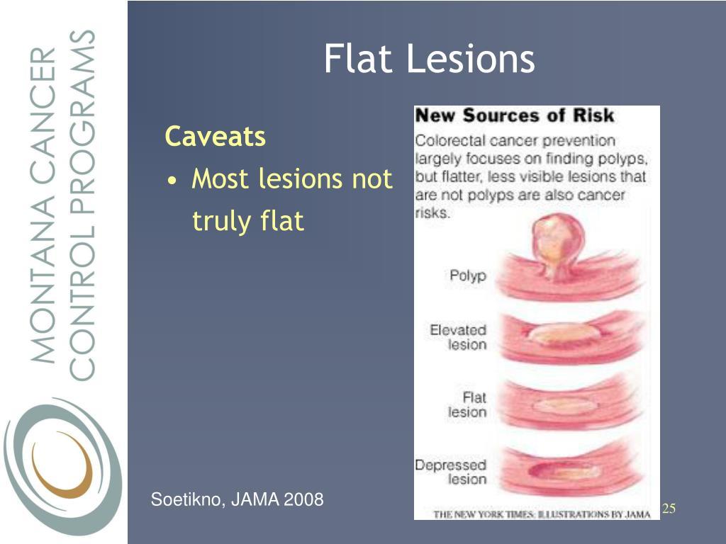 Flat Lesions