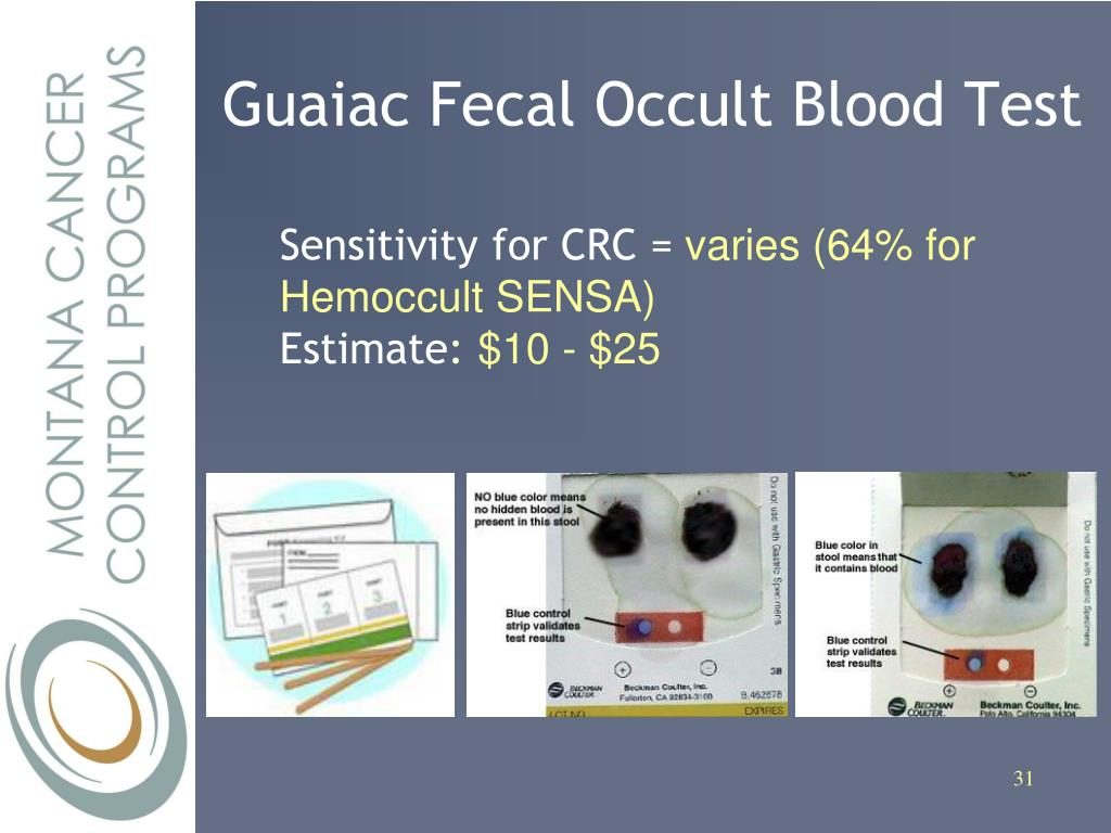 Guaiac Fecal Occult Blood Test