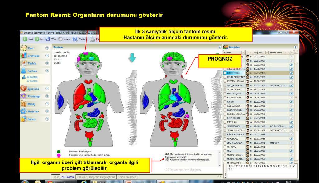 Fantom Resmi: Organların durumunu gösterir