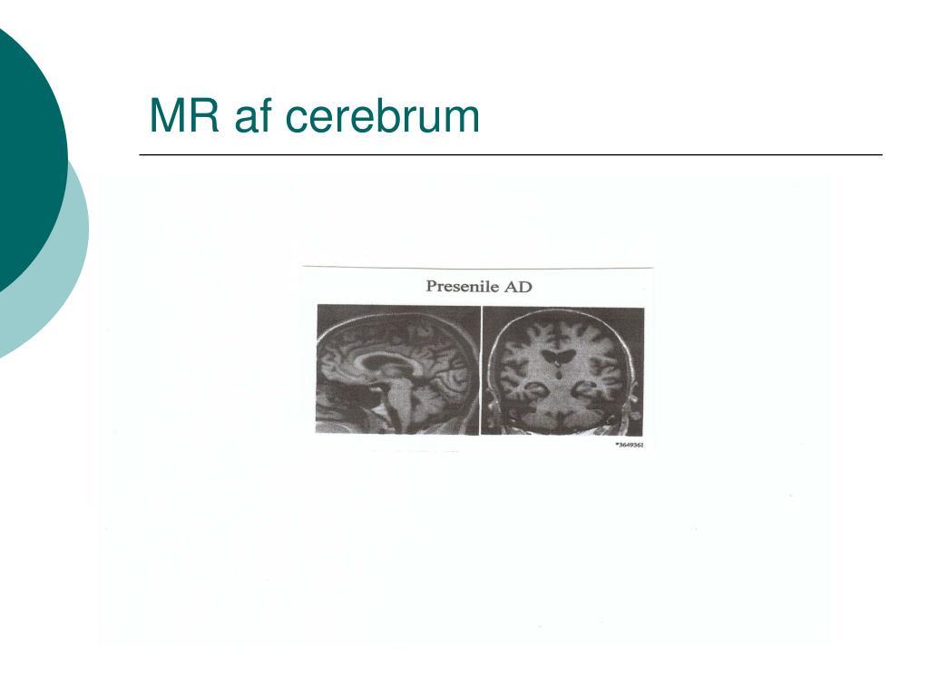 MR af cerebrum