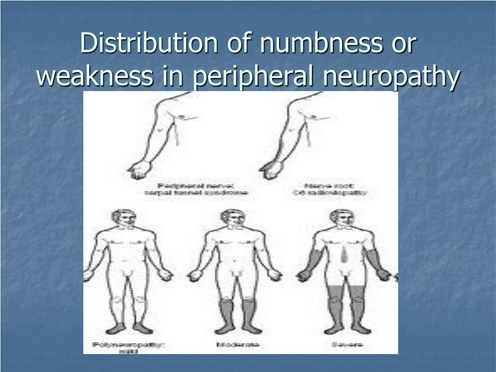 Distribution of numbness or weakness in peripheral neuropathy