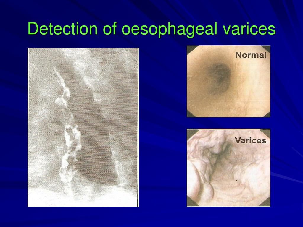Detection of oesophageal varices
