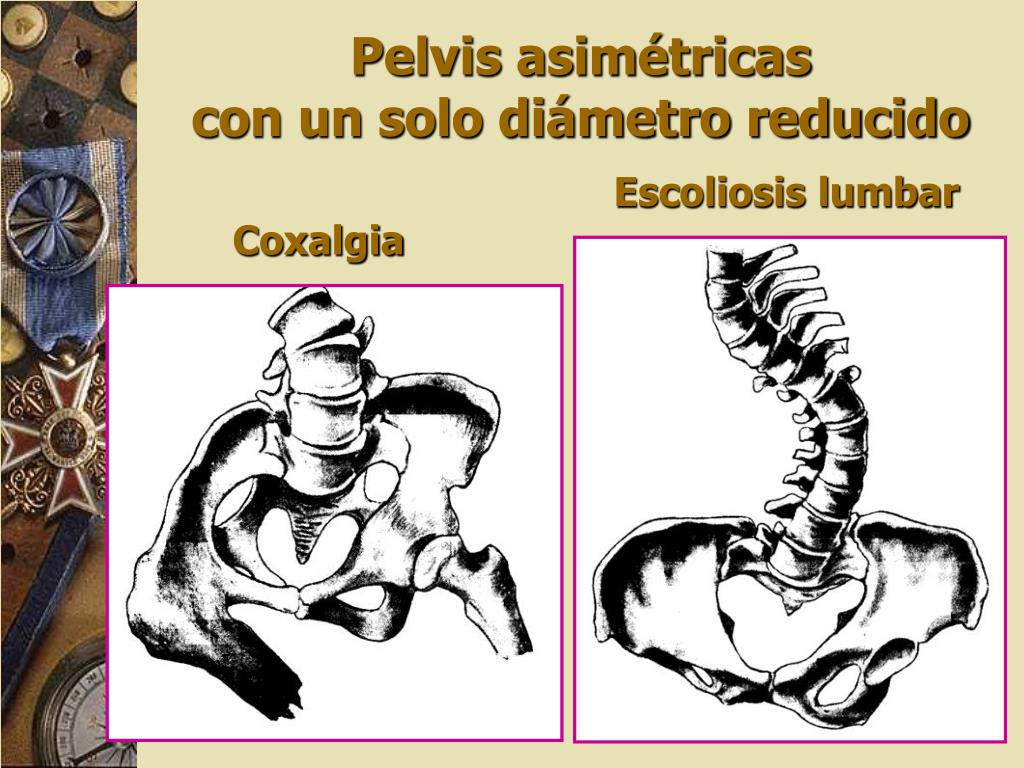 Coxalgia