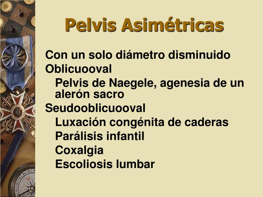 Pelvis Asimétricas