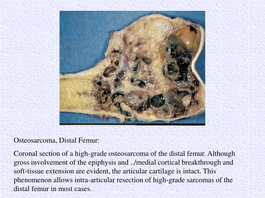 Osteosarcoma, Distal Femur: