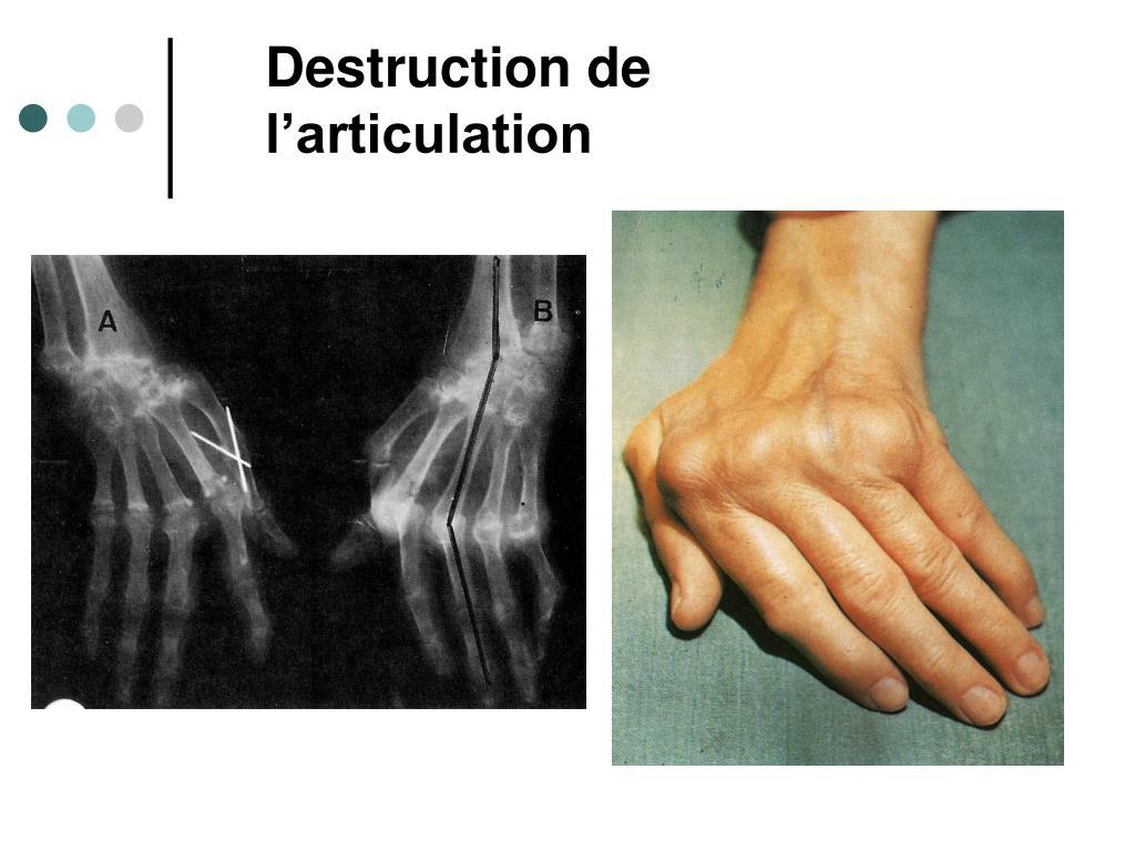 Destruction de l'articulation