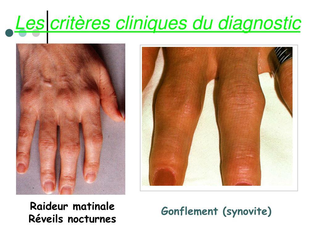 Les critères cliniques du diagnostic
