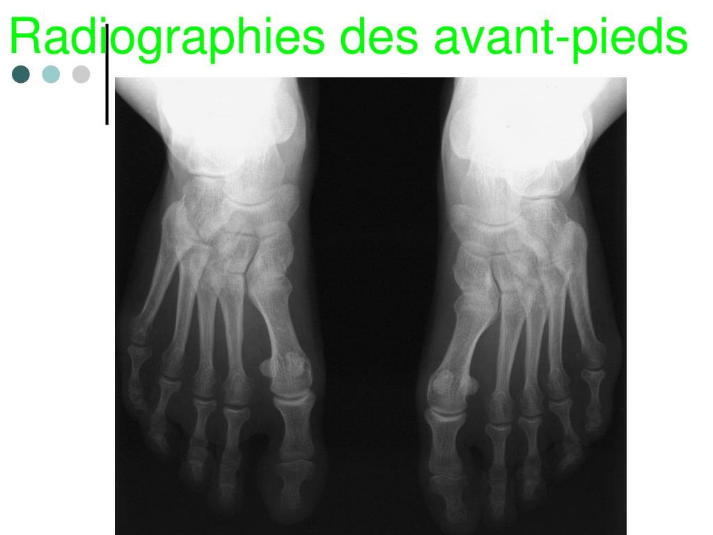 Radiographies des avant-pieds