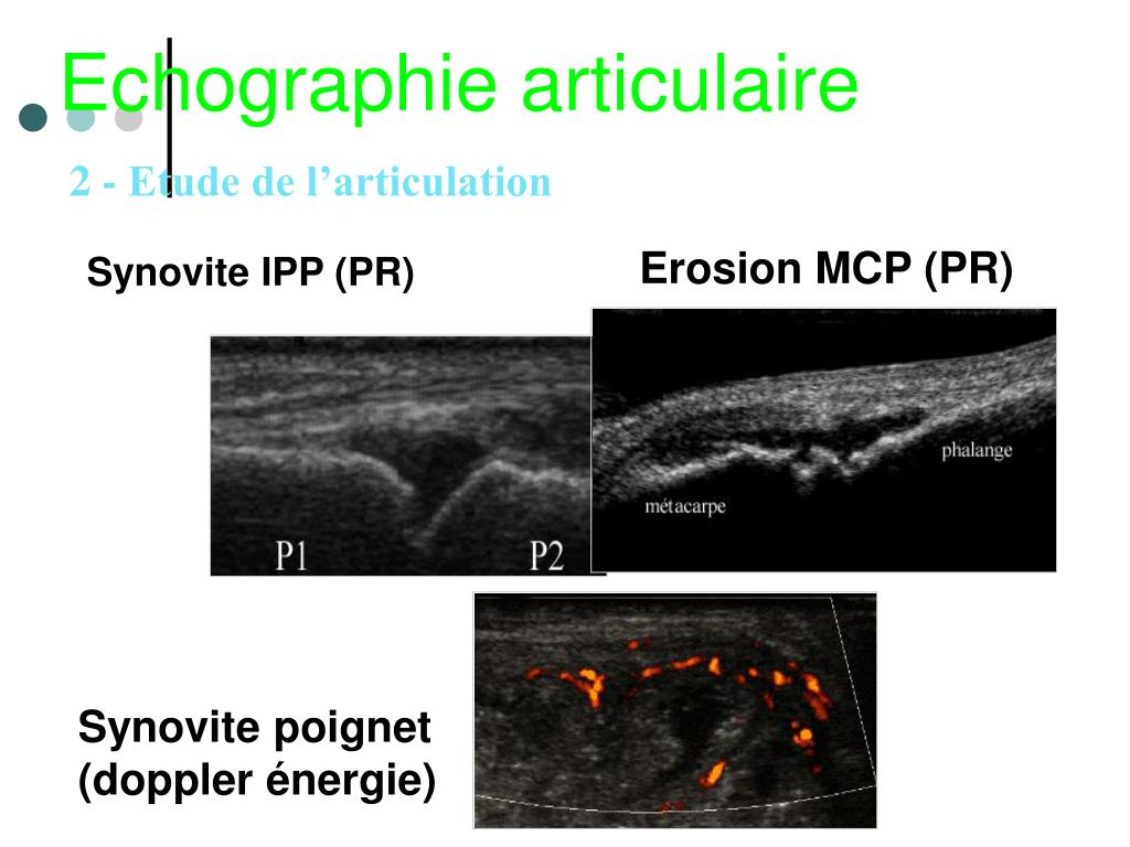 Synovite IPP (PR)
