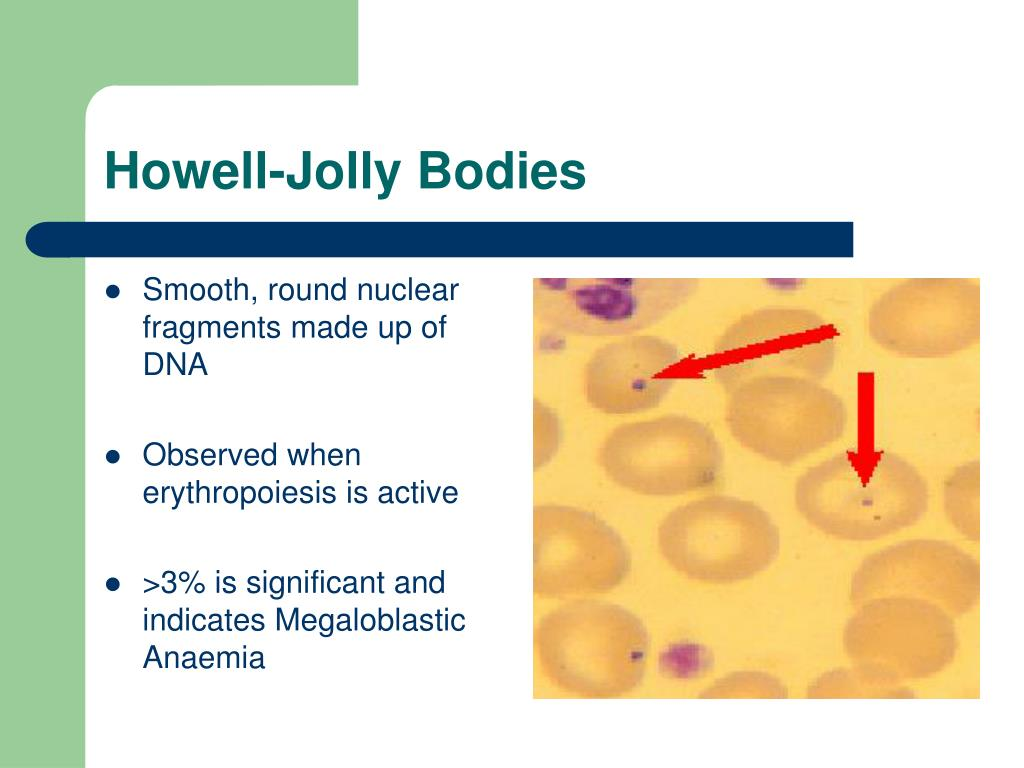 Howell-Jolly Bodies