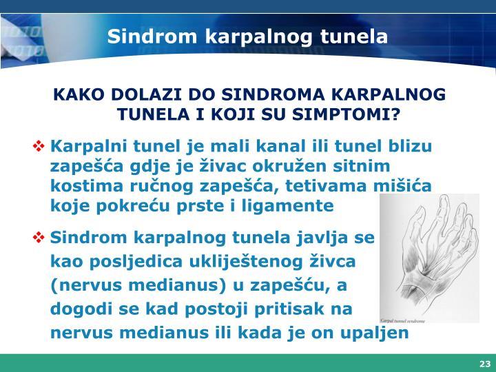 Sindrom karpalnog tunela