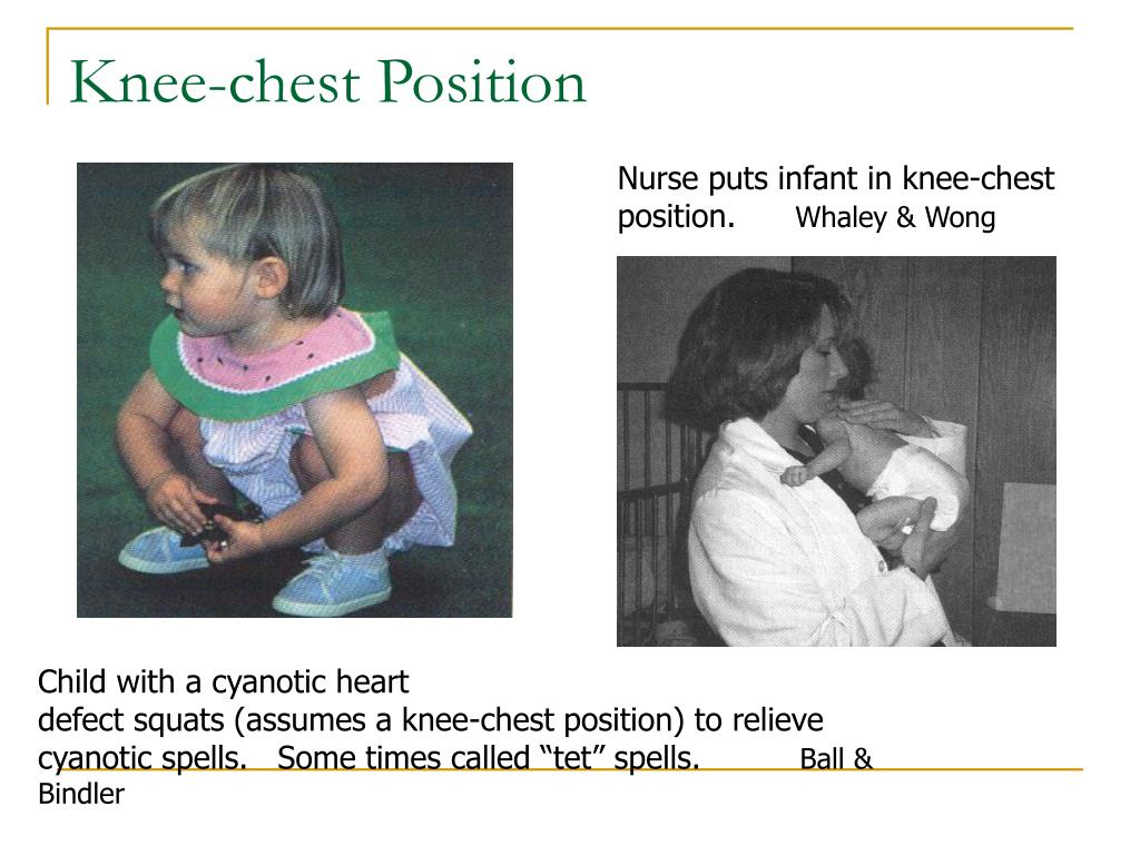 Knee-chest Position
