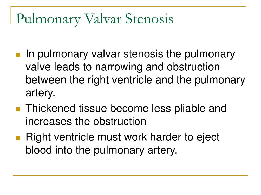 Pulmonary Valvar Stenosis