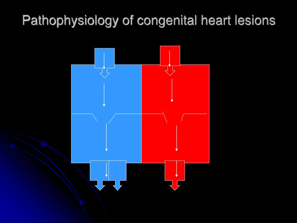 Pathophysiology of congenital heart lesions