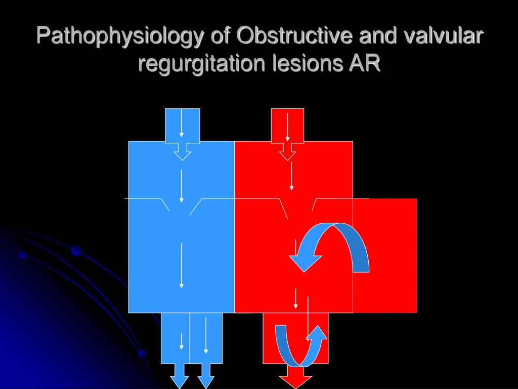 Pathophysiology of Obstructive and valvular regurgitation lesions AR