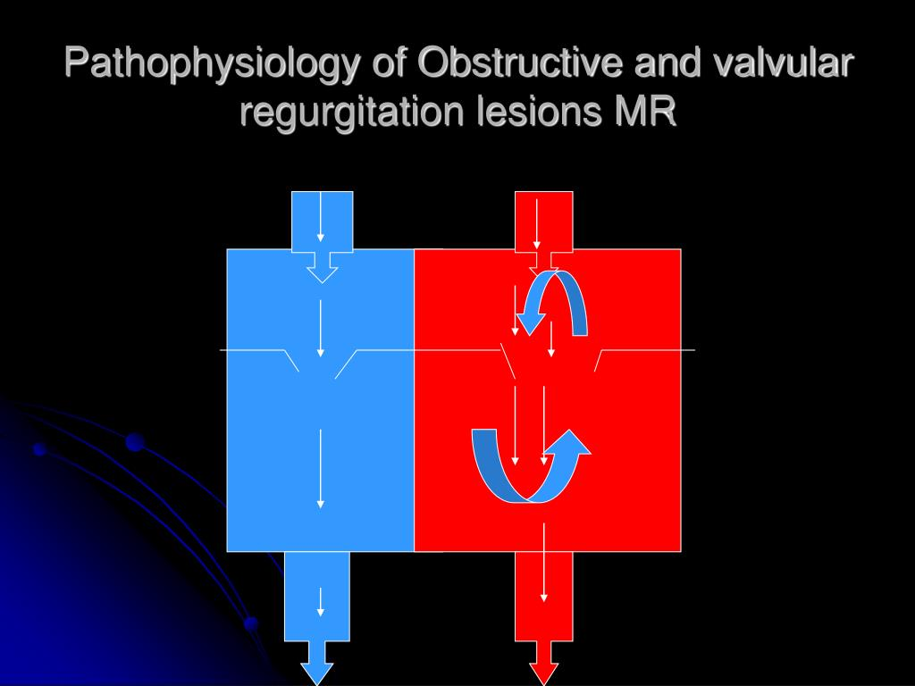 Pathophysiology of Obstructive and valvular regurgitation lesions MR