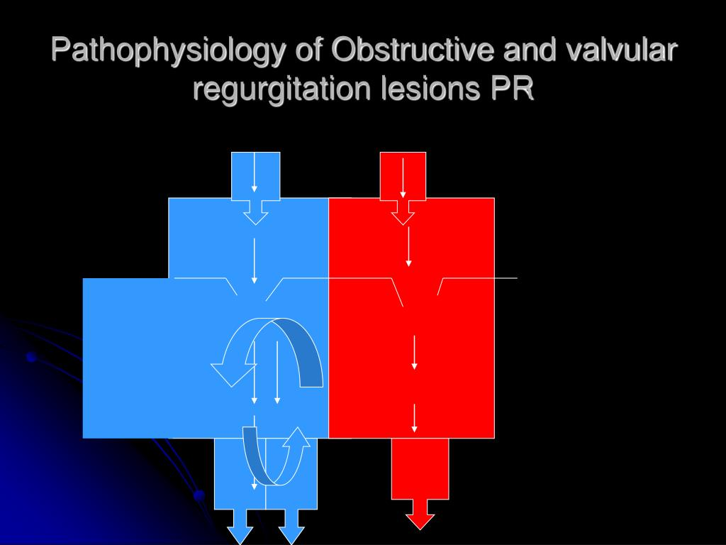 Pathophysiology of Obstructive and valvular regurgitation lesions PR