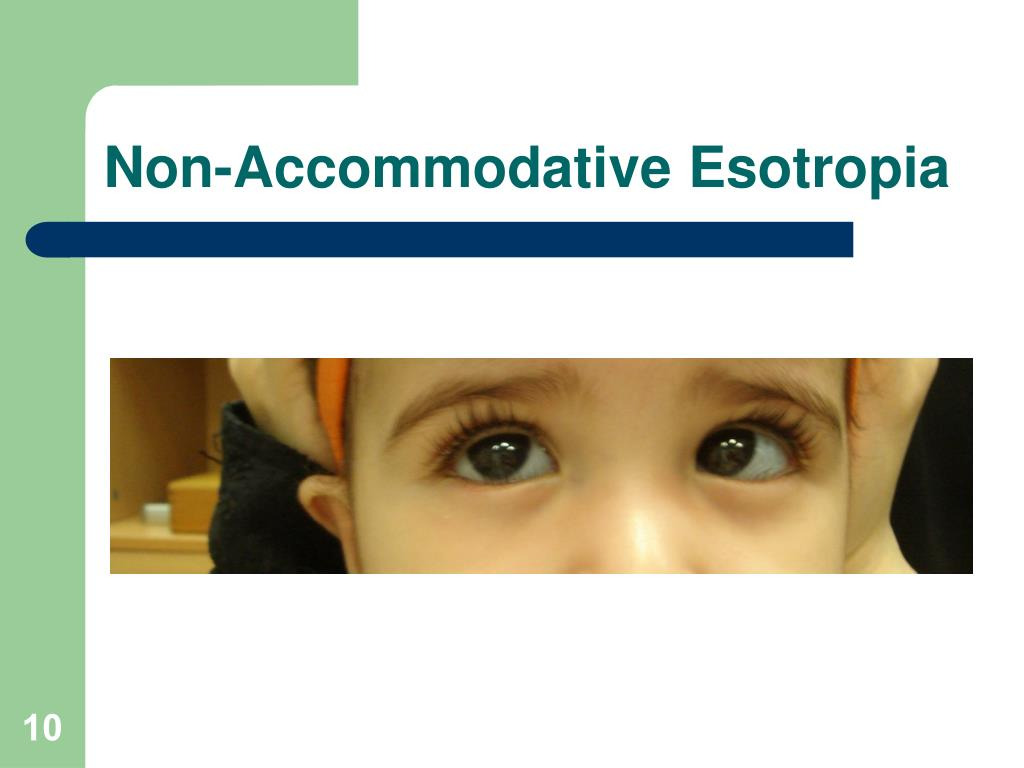 Non-Accommodative Esotropia