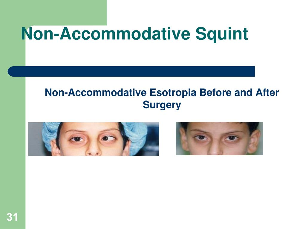 Non-Accommodative Squint