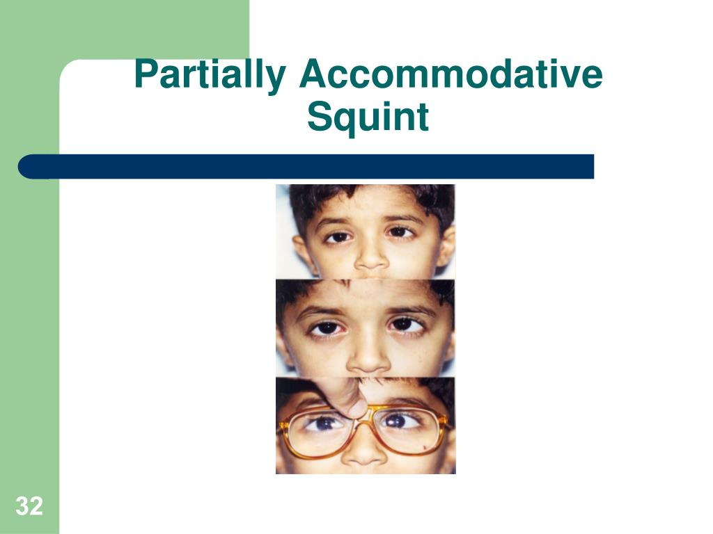 Partially Accommodative Squint