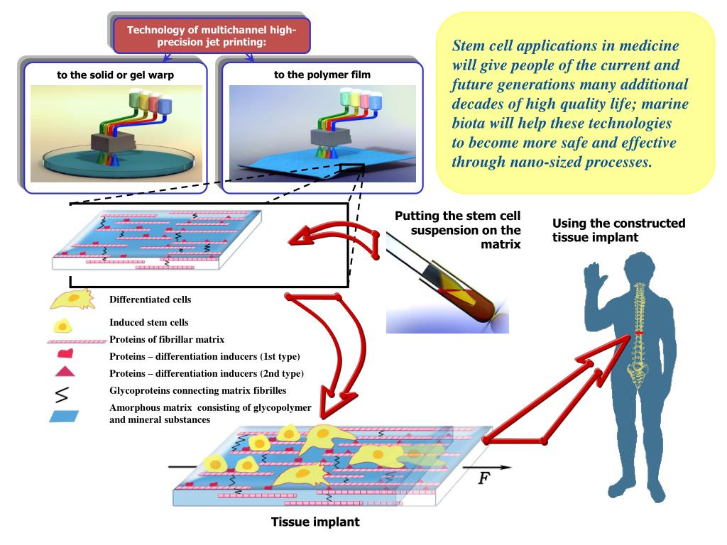 Technology of multichannel high-precision jet printing: