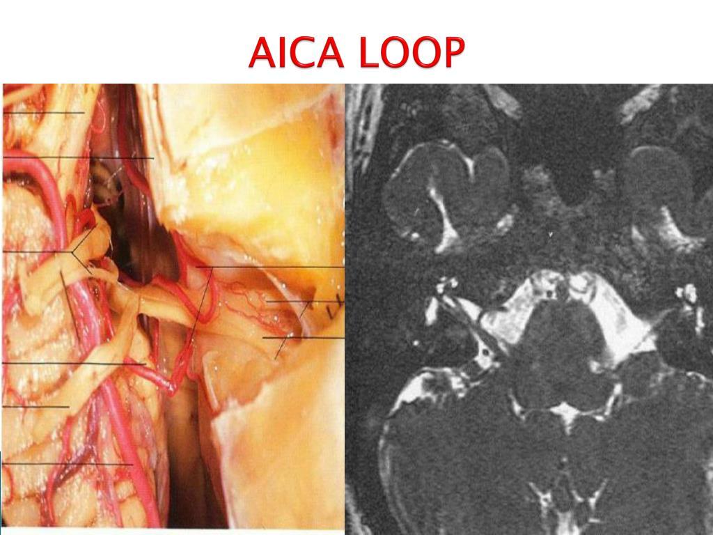 AICA LOOP