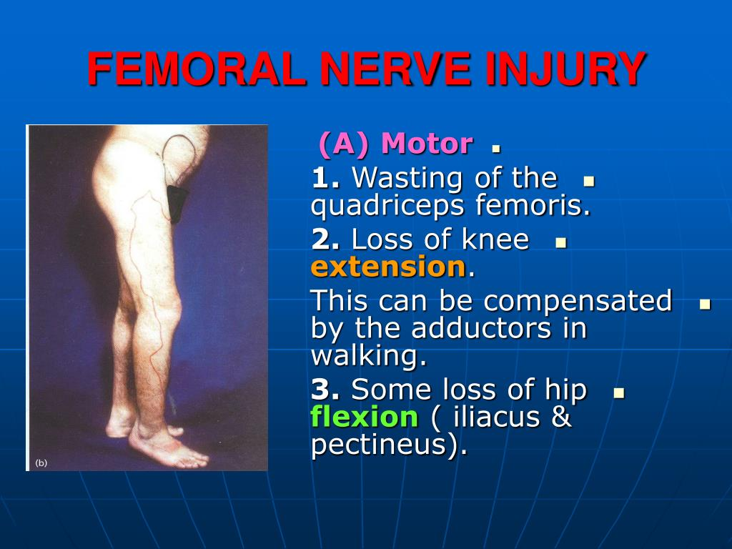 PPT - FEMORAL NERVE INJURY PowerPoint Presentation - ID:472761