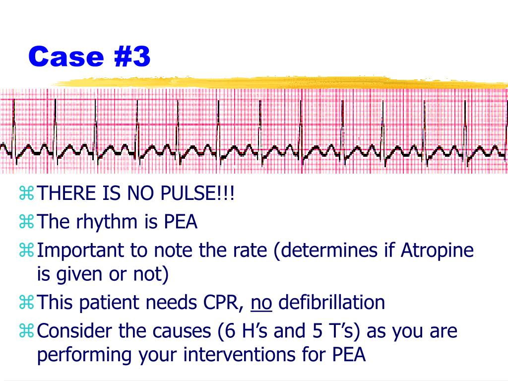 THERE IS NO PULSE!!!