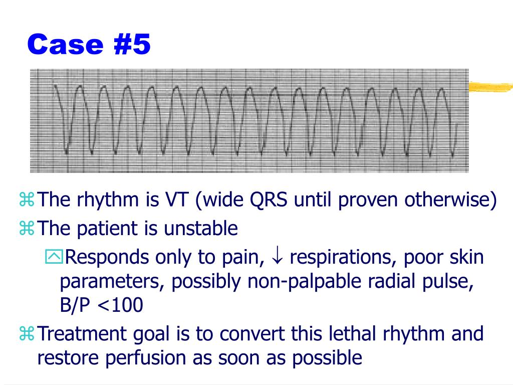 The rhythm is VT (wide QRS until proven otherwise)