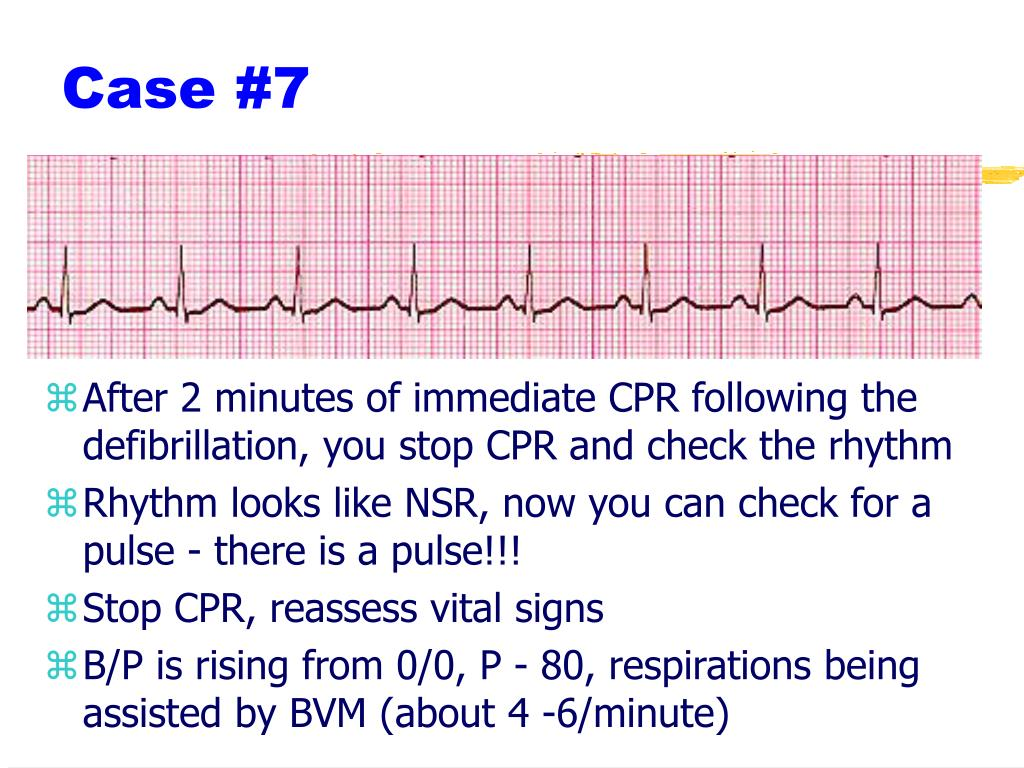 After 2 minutes of immediate CPR following the defibrillation, you stop CPR and check the rhythm