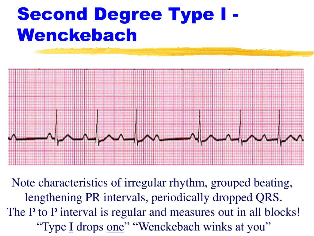 Second Degree Type I - Wenckebach