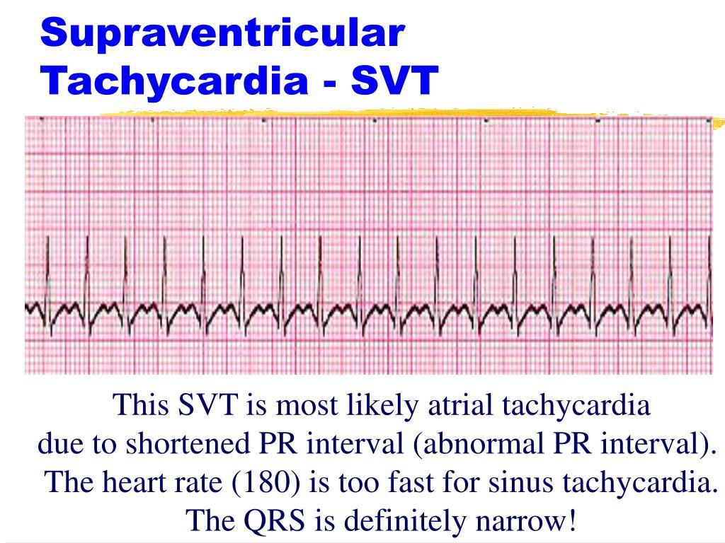 Supraventricular Tachycardia - SVT