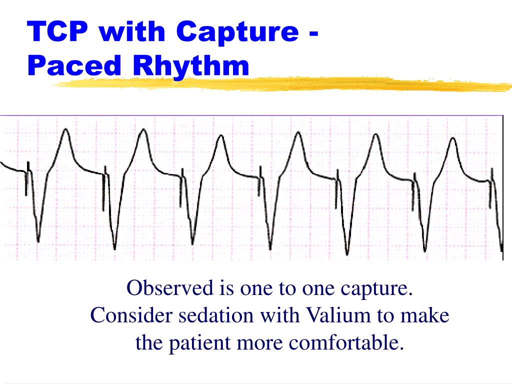 TCP with Capture -     Paced Rhythm