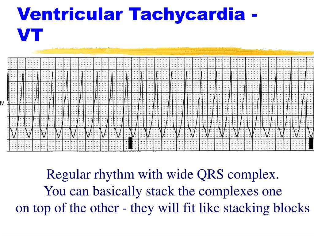 Ventricular Tachycardia - VT