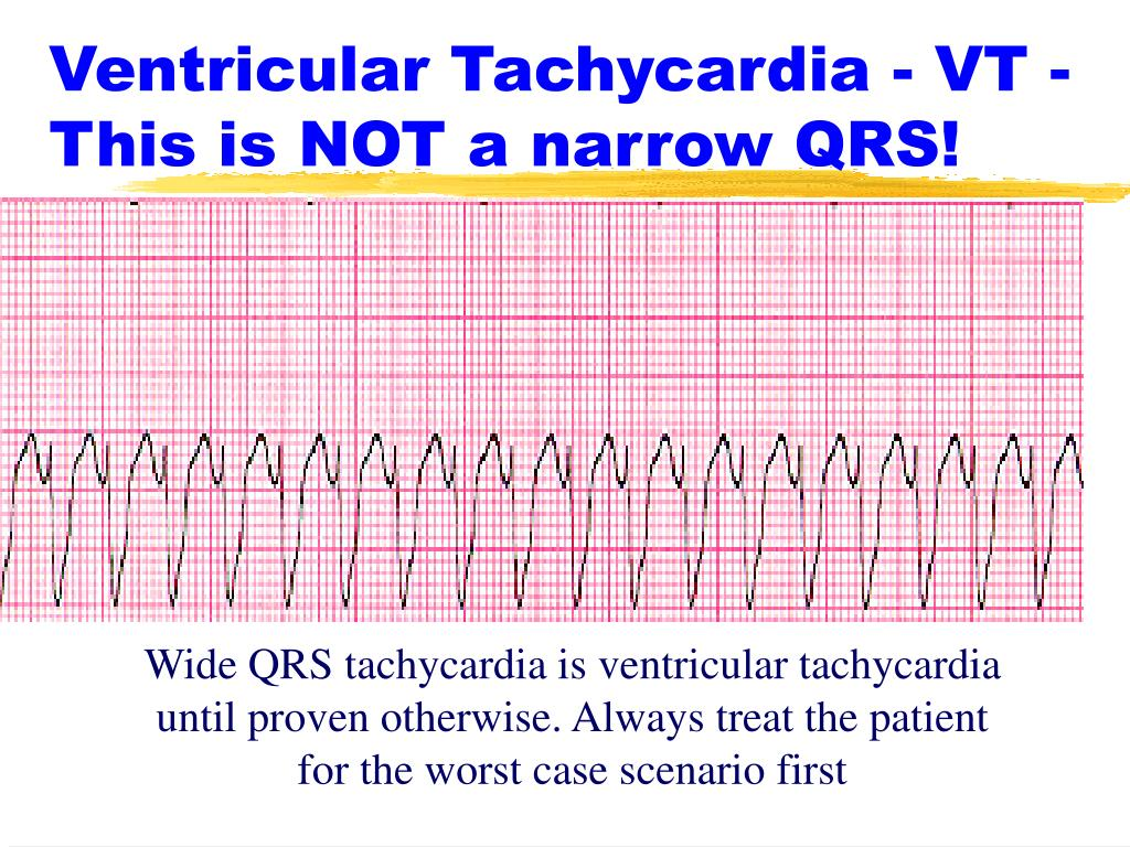 Ventricular Tachycardia - VT - This is NOT a narrow QRS!