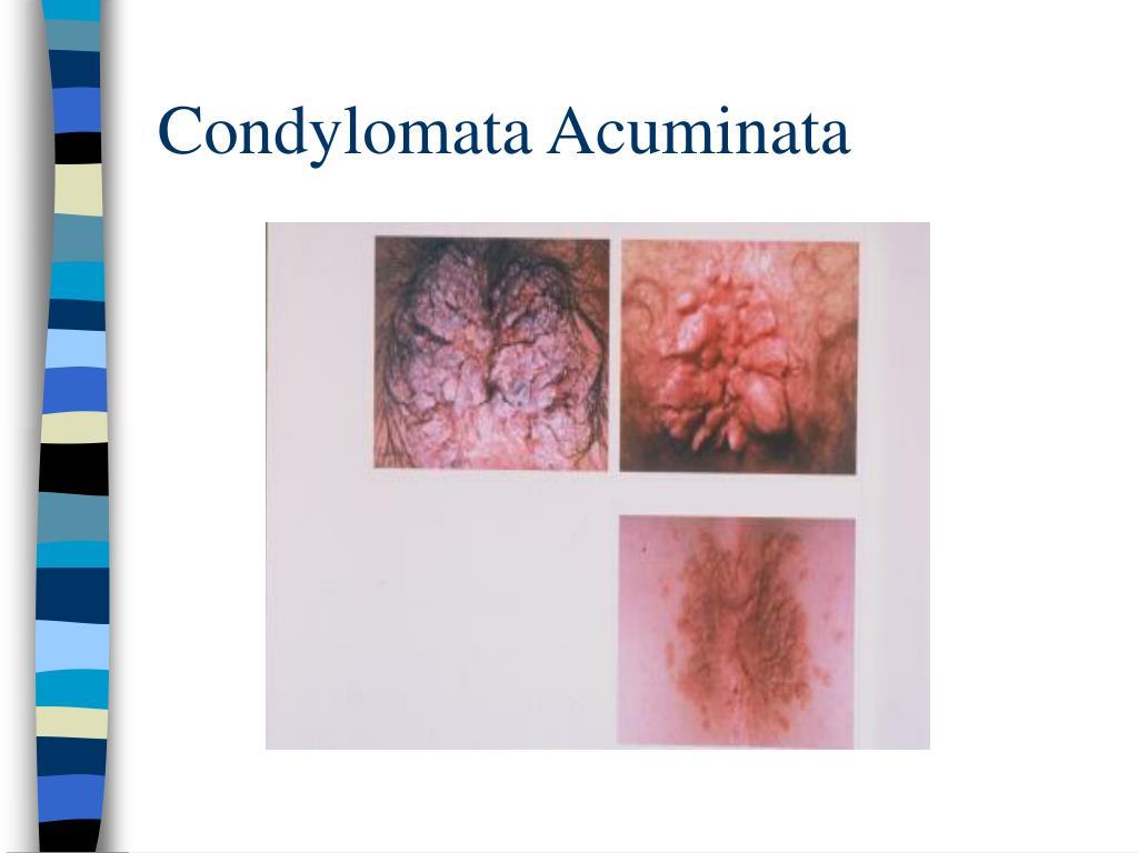 Condylomata Acuminata