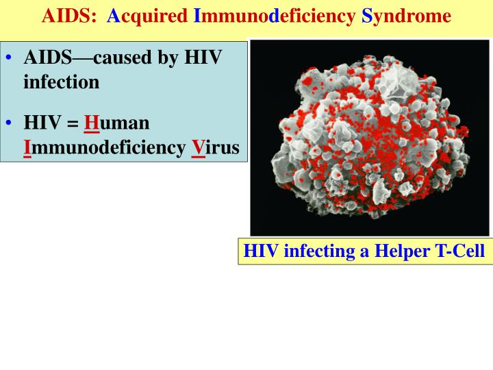 AIDS: