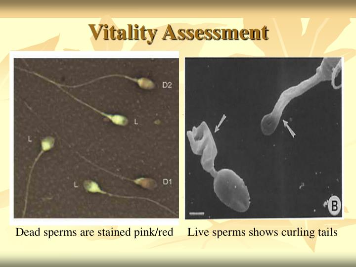 You Sperm test vitality opinion, interesting