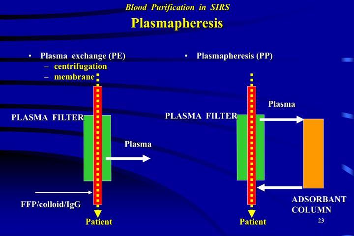 Plasma  exchange (PE)