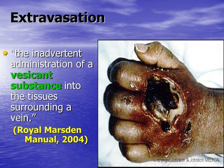 Extravasation