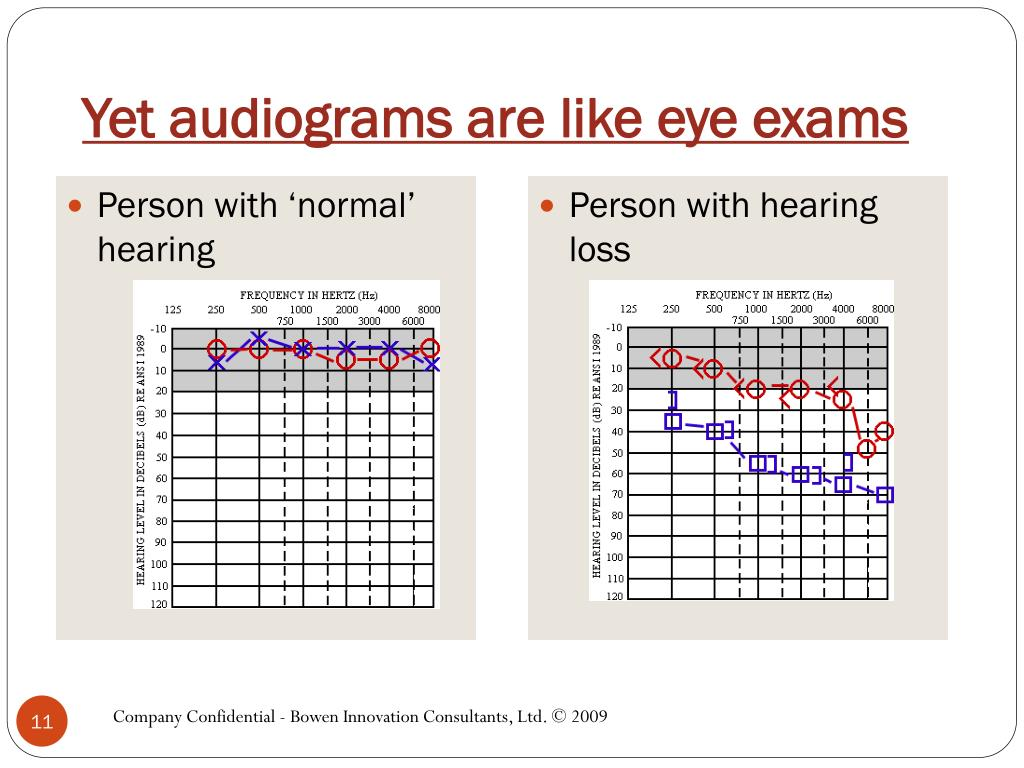 Yet audiograms are like eye exams